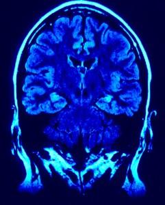 brain-photo-241x300